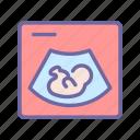 ultrasound, pregnancy, medical, embryo