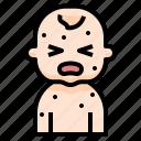 avatar, baby, fever, infant, irritation, newborn, rash