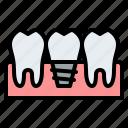 dental, implant, treatment, healthcare