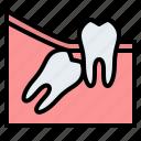 wisdom, teeth, angular, dental, gum