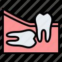 wisdom, teeth, horizontal, dental, gum