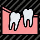 wisdom, teeth, partial, eruption, dental, gum