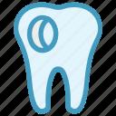 caries, dental, dentist, hole, stomatology, tooth