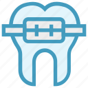 braces, dentist, medical, metal, straighten, tooth