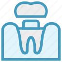 dental, dentist, medical, stomatology, teeth, treatment icon