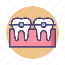 braces, dental, dental braces, metal braces icon