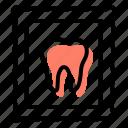 stomatology, dentistry, tooth, dental restoration