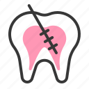 dental, dentist, dentistry, endodontic, root canal, tooth, treatment