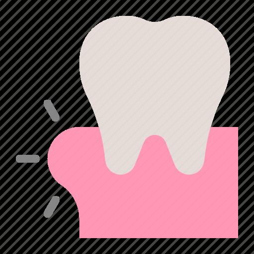 dental, dentist, dentistry, gingivitis, gums, swollen gums, tooth icon