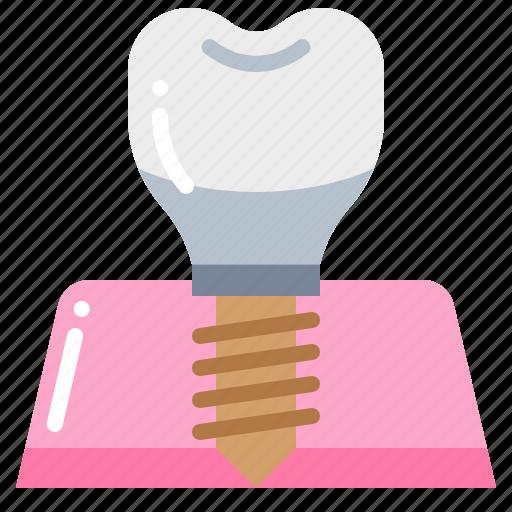 dental, dentist, implant, teeth, tooth icon