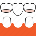 dental bridges, dentist, dentistry, orthodontics, teeth, tooth icon