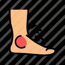 foot, gout, pain, symptom, health, disease