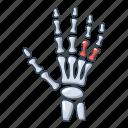 bone, cartoon, hand, inflammation, joint, logo, object